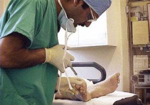 Chiropody-Treatment