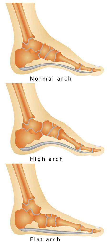 flat-feet-large